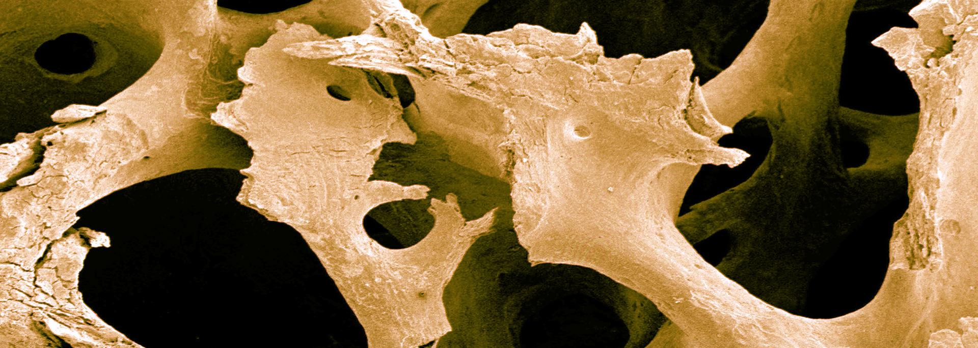 10 Minuten täglich gegen Osteoporose