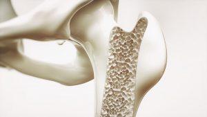 Beckenknochen mit Osteoporose